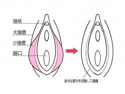 小陰唇の治療法