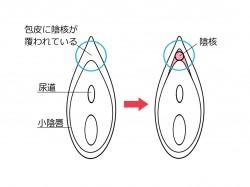 陰核(クリトリス)の治療法