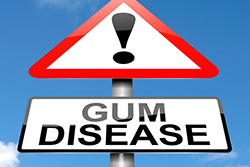 女性ホルモンの影響!? 女性は「歯周病」になりやすいって知ってた?
